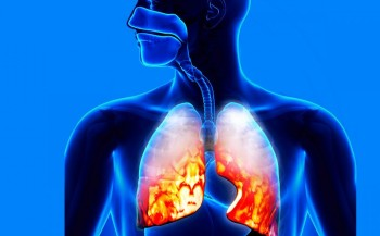 Pneumonia em crianças: 10 coisas que os pais precisam saber sobre a doença